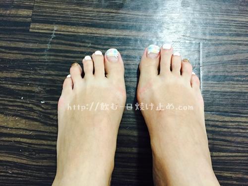紫外線で日焼けした足の写真
